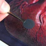 Nanopatch for the heart restores damaged areas.