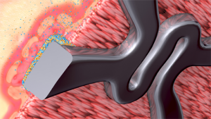 Biodegradable polymer stents