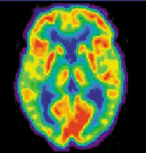 Brain Alzheimer's PET scan