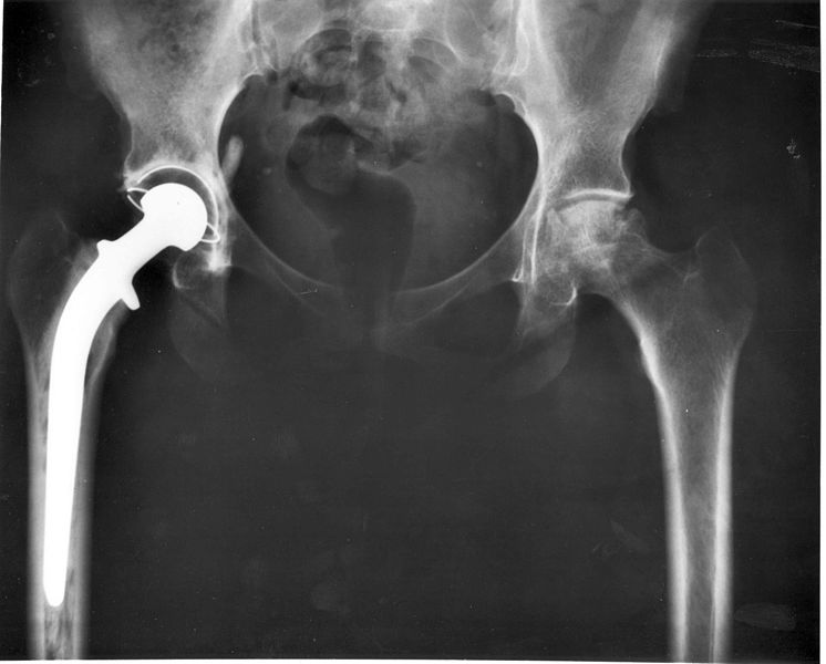 The right hip joint has the metal-and-plastic artificial hip implant that is proving to be better than the newer all-metal implant..